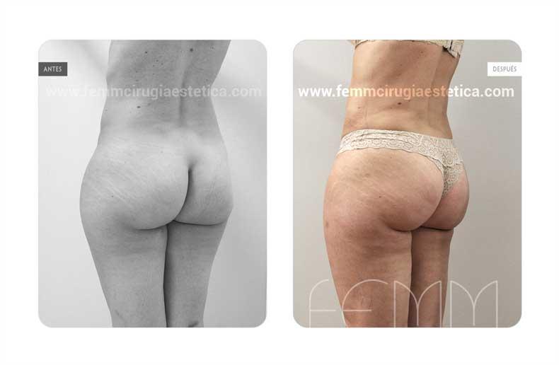 Liposucción · Caso 14 - Fotografía 2