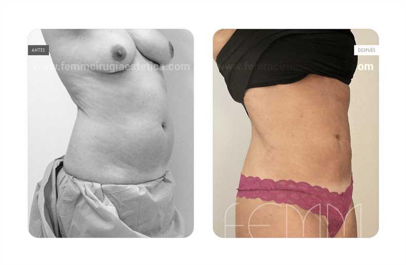 Liposucción · Caso 15 - Fotografía 1