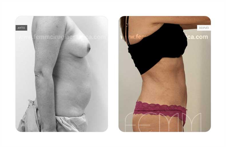 Liposucción · Caso 15 - Fotografía 2