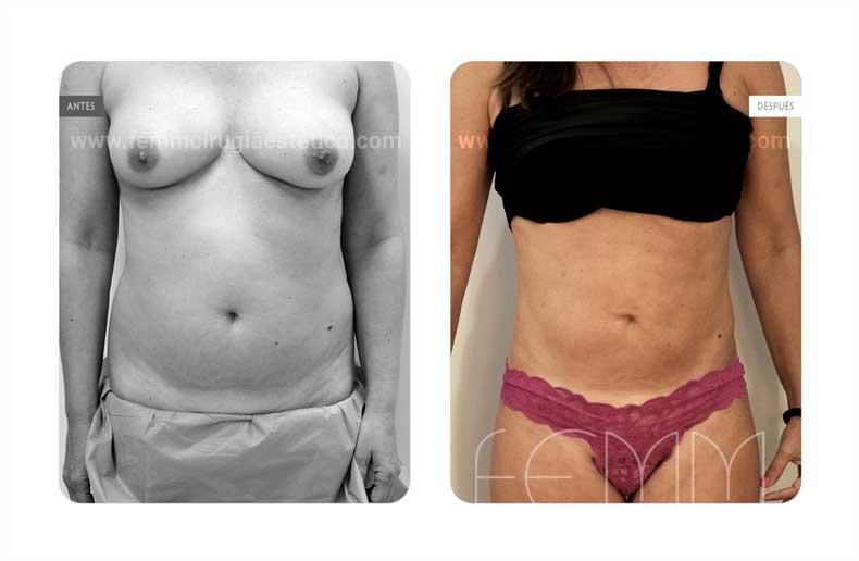 Liposucción · Caso 15 - Fotografía 3