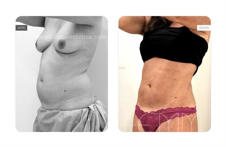 Liposucción · Caso 15 - Fotografía 4