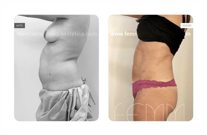 Liposucción · Caso 15 - Fotografía 5