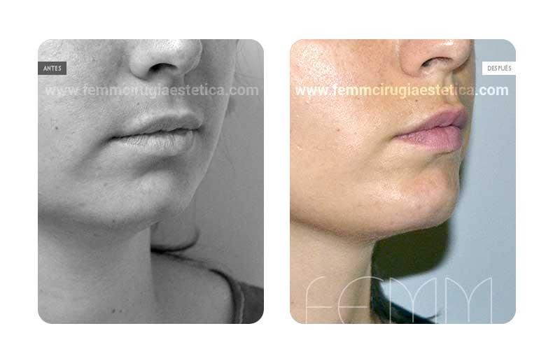 Mentoplastia y lipolifting facial · Caso 1 - Fotografía 1