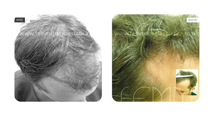 Microinjerto capilar de la tira o técnica FUSS · Caso 8 - Fotografía 2
