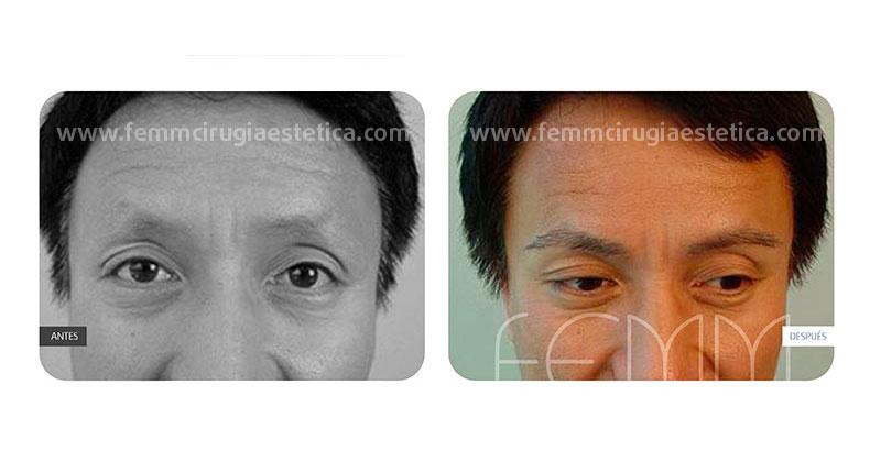 Microinjerto capilar de la tira o técnica FUSS · Caso 14 - Fotografía 1