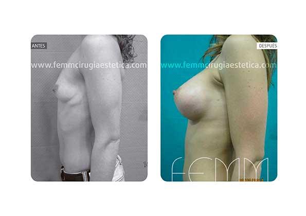 Corrección de pecho tuberoso con prótesis anat de 320cc · Caso 3 - Fotografía 1