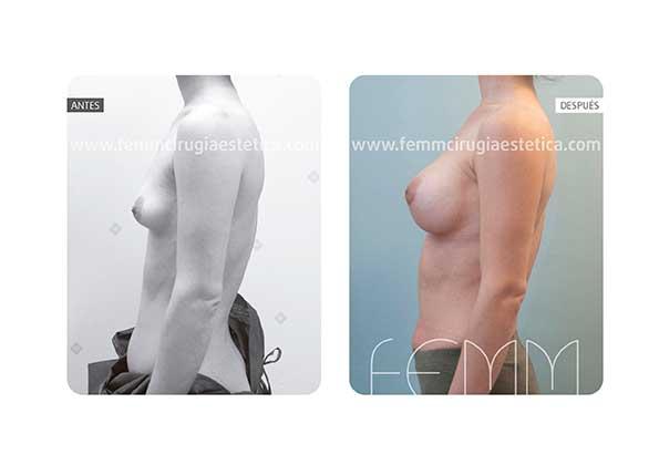 Corrección de pecho tuberoso y asimetría mamaria · Caso 4 - Fotografía 1
