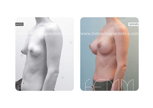Corrección de pecho tuberoso y asimetría mamaria · Caso 4 - Fotografía 2
