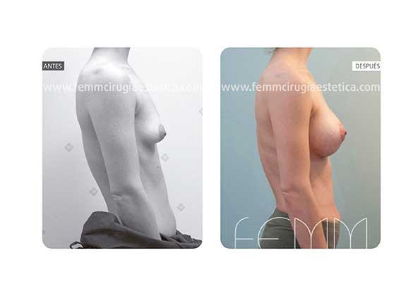 Corrección de pecho tuberoso y asimetría mamaria · Caso 4 - Fotografía 4