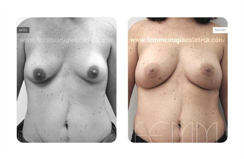 Corrección de pecho tuberoso · Caso 10 - Fotografía 1