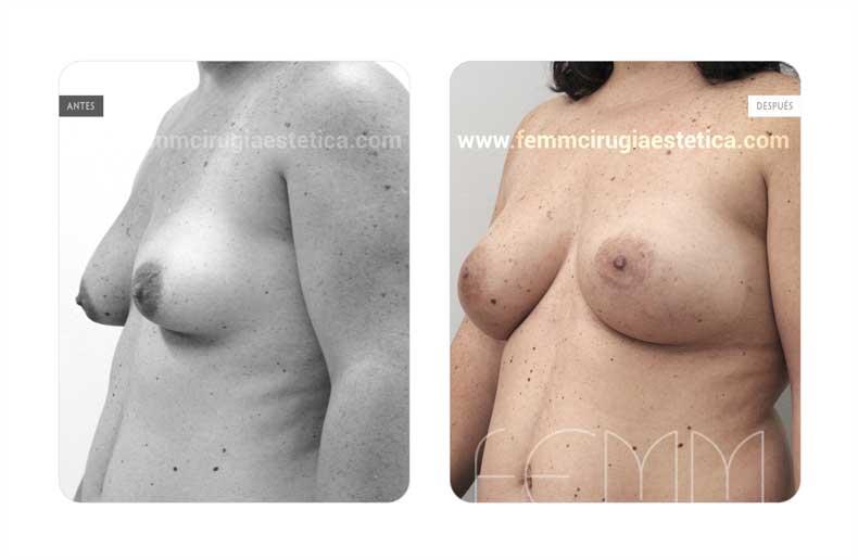Corrección de pecho tuberoso · Caso 10 - Fotografía 4
