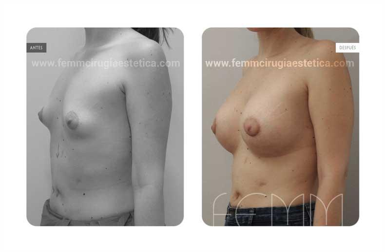 Corrección de pecho tuberoso · Caso 11 - Fotografía 1