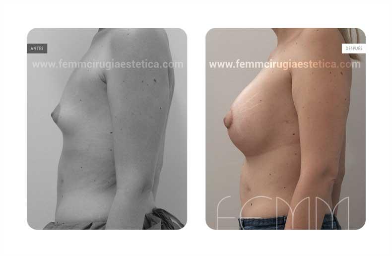 Corrección de pecho tuberoso · Caso 11 - Fotografía 2