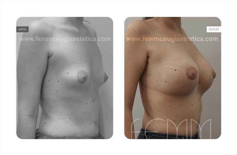 Corrección de pecho tuberoso · Caso 11 - Fotografía 4