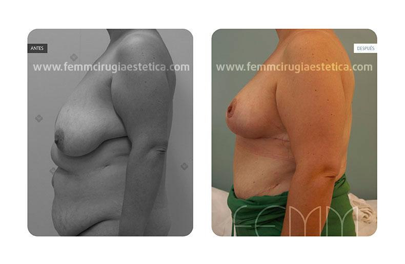 Reducción de pecho y liposucción · Caso 2 - Fotografía 1