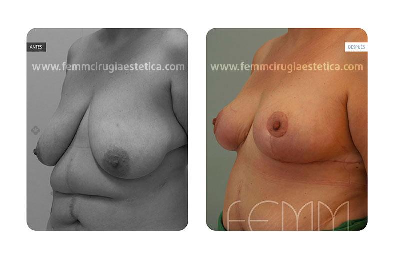 Reducción de pecho y liposucción · Caso 2 - Fotografía 2