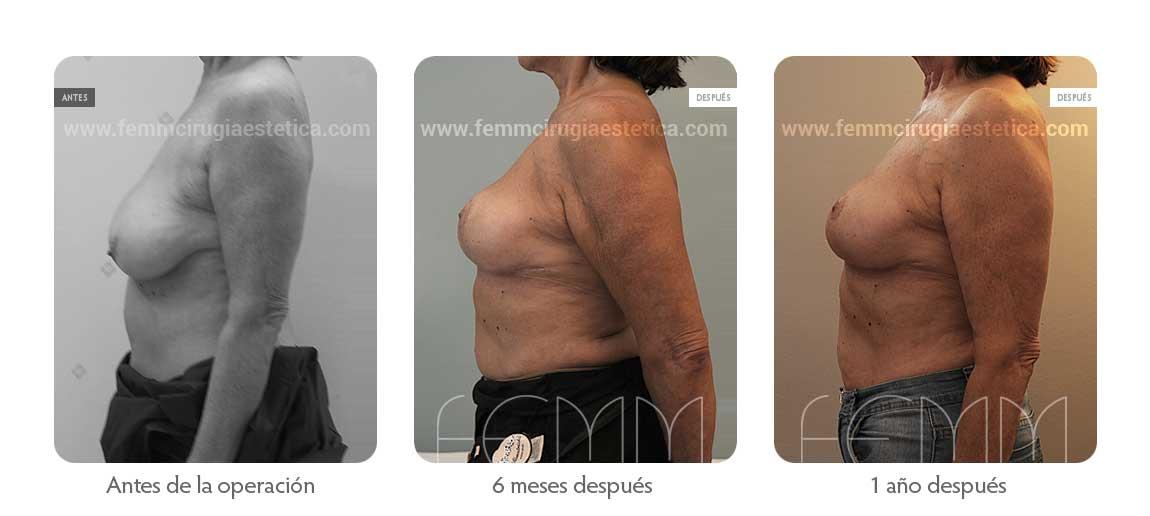 Reducción de pecho según técnica de cicatriz T invertida · Caso 5 - Fotografía 2