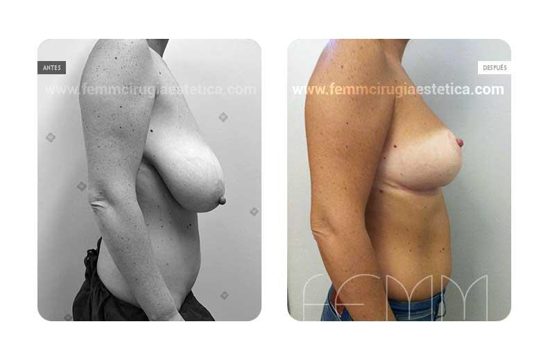 Reducción de pecho mediante resecado de 480 gr de tejido · Caso 3 - Fotografía 2