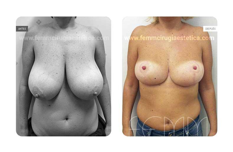 Reducción de pecho mediante resecado de 480 gr de tejido · Caso 3 - Fotografía 3