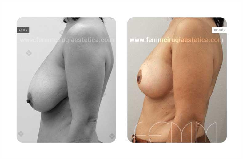 Asimetria mamaria y reducción de pecho · Caso 8 - Fotografía 3