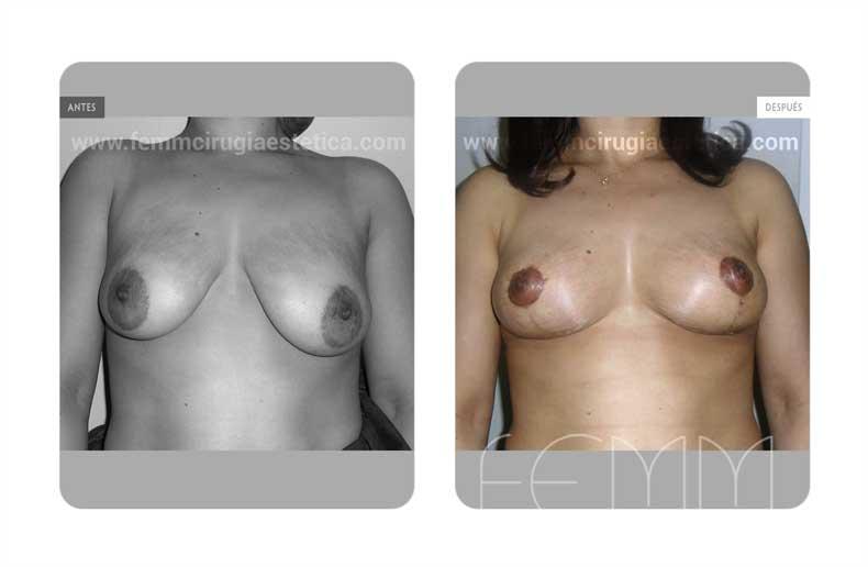 Asimetria mamaria y reducción de pecho · Caso 9 - Fotografía 1
