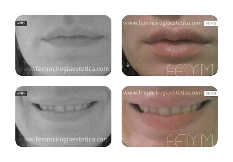 Aumento y remodelación de labios · Caso 1 - Fotografía 1