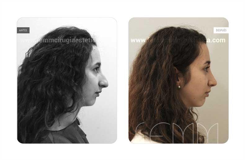 Rinoplastia cerrada · Caso 17 - Fotografía 1