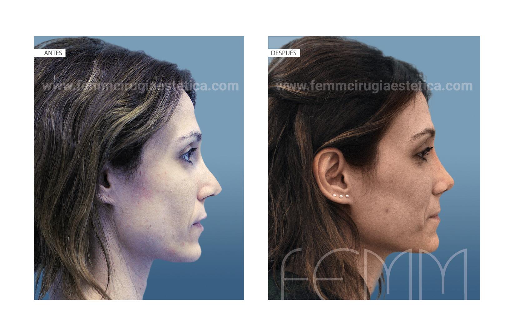 Rinoplastia secundaria / fascia temporal · Caso 55 - Fotografía 1