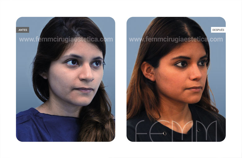 Rinoplastia · Caso 59 - Fotografía 2