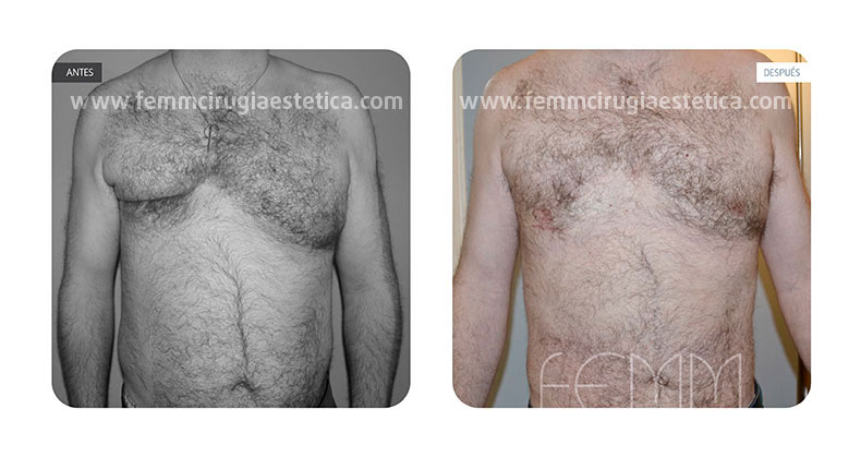 Remodelación pectoral a paciente con Síndrome de Poland · Caso 1 - Fotografía 1