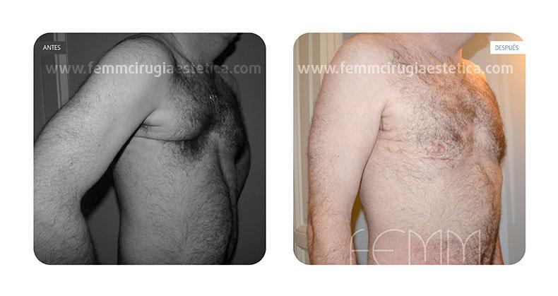 Remodelación pectoral a paciente con Síndrome de Poland · Caso 1 - Fotografía 2