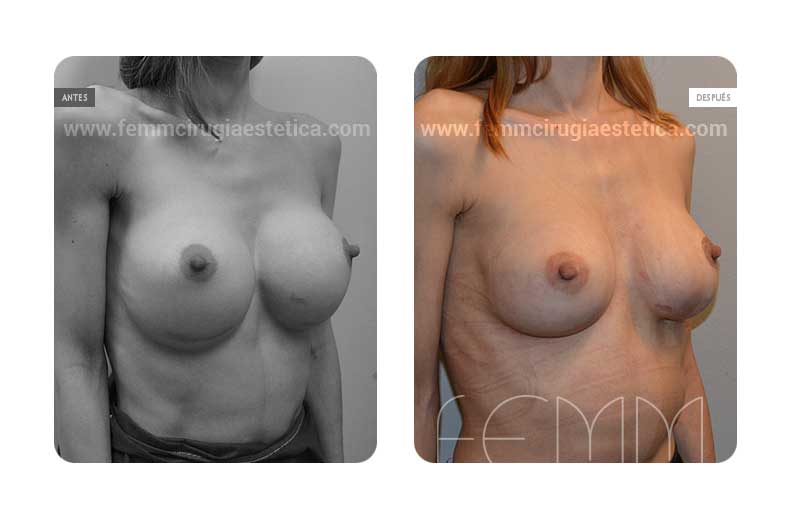 Sustitución prótesis excesivas por anatómicas de 240cc · Caso 2 - Fotografía 1