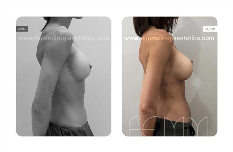 Sustitución de prótesis PIP por anatómicas de 345cc · Caso 3 - Fotografía 2