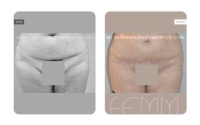 Corrección de cicatriz de cesárea · Caso 1