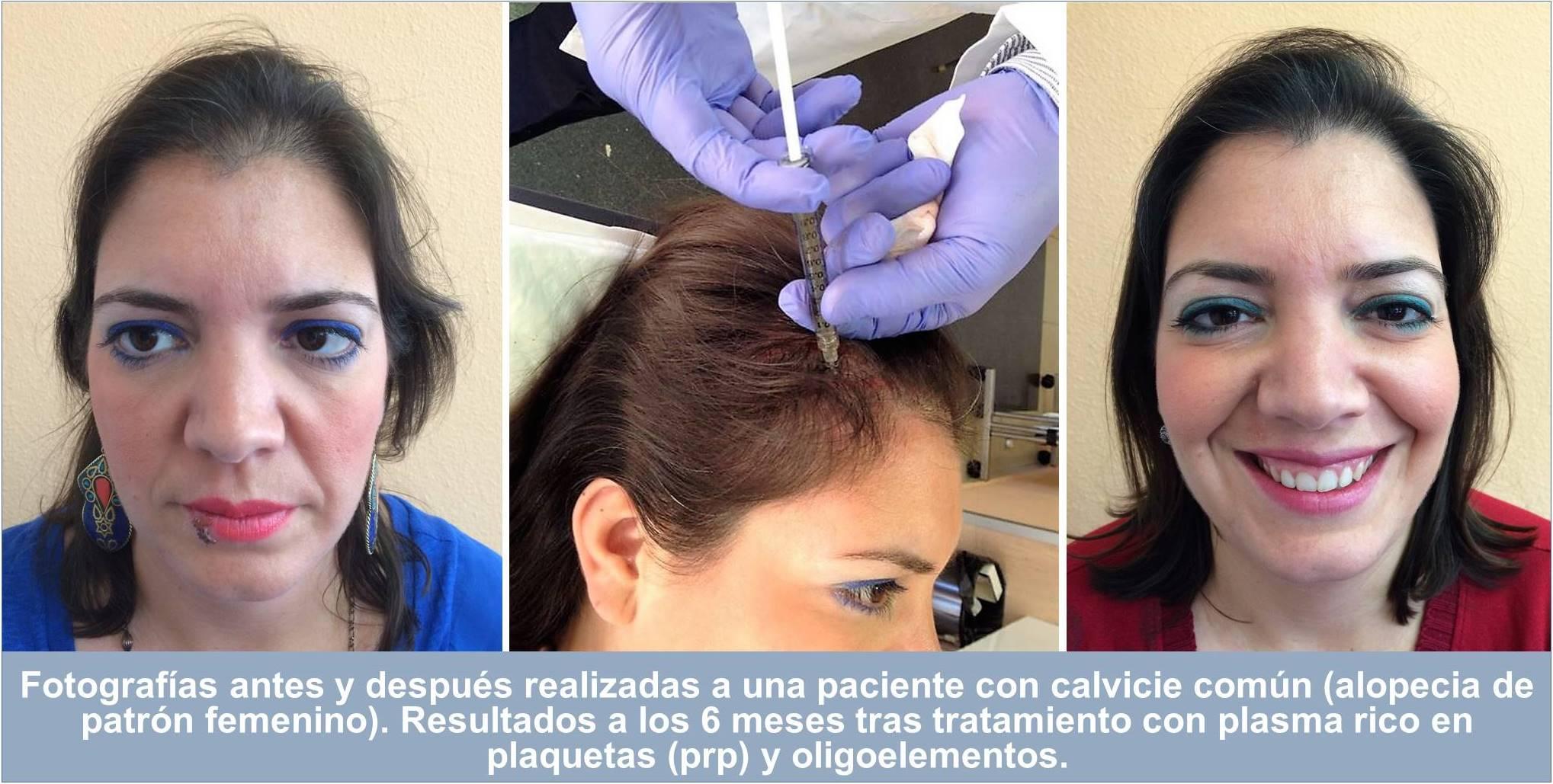 Fotografías antes y después realizadas a Daniela, paciente con calvicie común (alopecia de patrón femenino). Resultados a los 6 meses tras tratamiento con plasma rico en plaquetas (prp) y oligoelementos.