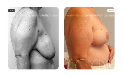 Reducción y elevación del pecho sin prótesis · Caso 7