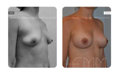 Elevación de pecho con prótesis anatómicas de 270cc · Caso 4