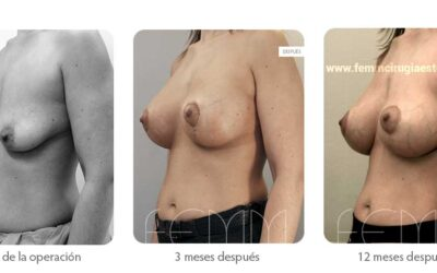 Elevación de pecho con prótesis anatómicas · Caso 6