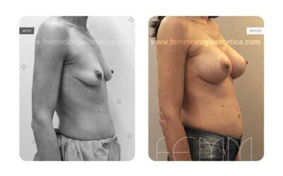 Elevación de pecho con prótesis anatómicas de 370cc · Caso 7