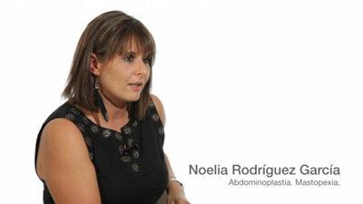 Eelevación del pecho y abdominoplastia · Caso 1