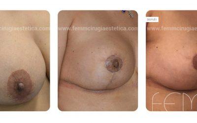 Explantación de implantes mamarios · Caso 3