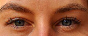 Con el bótox corregimos las arrugas de expresión faciales.