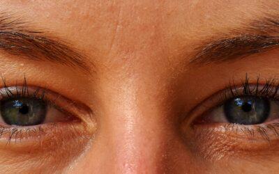 BÓTOX CONTRA LAS ARRUGAS DE EXPRESIÓN: Testimonio sobre arrugas faciales