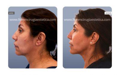 Rejuvenecimiento facial con FaceTite · Caso 3