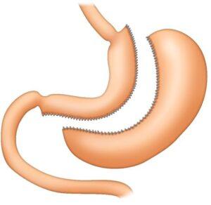 gastrectomía vertical