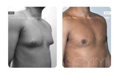 Ginecomastia en hombres: ¿puede variar tras la pérdida de peso?