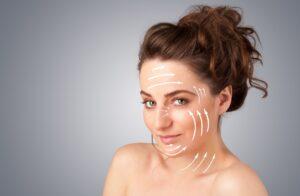Hilos tensores PDO para tratar la flacidez del rostro