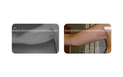 Lifting braquial o estiramiento de brazos  · Caso 1