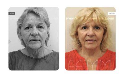 Lipolifting facial y blefaroplastia · Caso 7