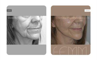 Lifting facial · Caso 2